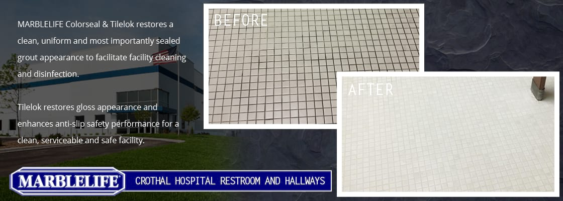 Featured Before & After Image - 23